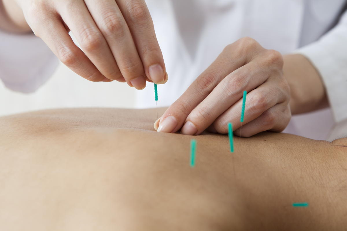 Acupuncture being performed